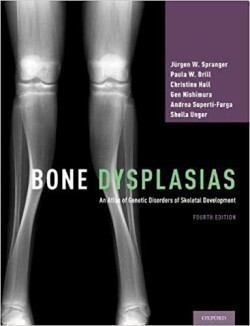 Bone Dysplasias An Atlas of Genetic Disorders of Skeletal Development An Atlas of Genetic Disorders of Skeletal Development