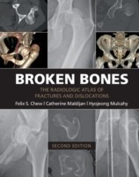 Broken Bones The Radiologic Atlas of Fractures and Dislocations