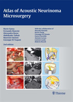 Atlas of Acoustic Neurinoma Microsurgery . Zus.-Arb.: Mario Sanna Essam Saleh, Benedict Panizza, Alexandra Russo, Abdel TaibahWith the collaboration of Refik Caylan, Fernando Mancini ...