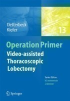 Video - assisted Thoracoscopic Lobectomy