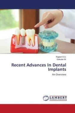 Recent Advances In Dental Implants