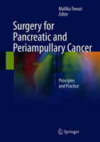 Surgery for Pancreatic and Periampullary Cancer